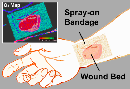 Boex-smart-bandage-image-small