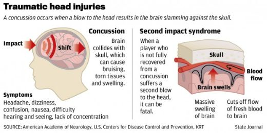 Simple Blood Test May Be Able To Diagnose Concussions For Up To Seven Days After Injury
