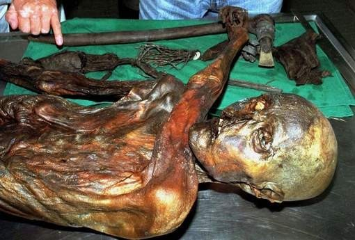 Otzi The Iceman Should Have Visited A Dentist (Or Eaten Less Junk Food)!